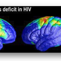 Scans Show How HIV Attacks Brain