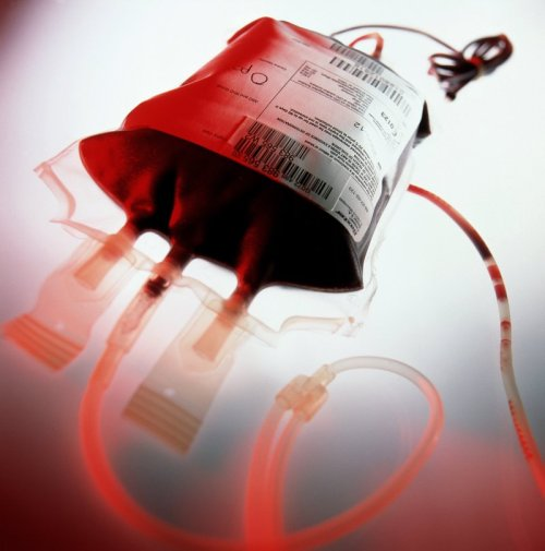 Blood-Transfusion-2