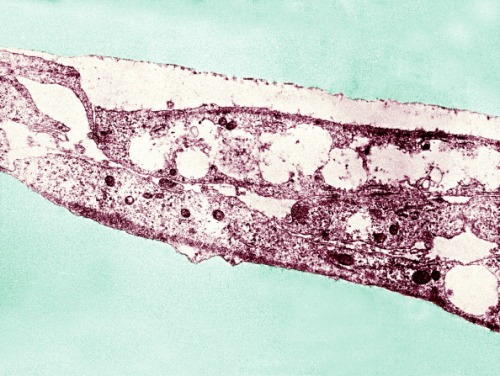 Syphilis Bacterium. Treponema Pallidum Subsp. Pallidum On Cultures Of Cotton Tail Rabbit Epithelium Cells Sf1Ep. Treponema Pallidum Is The Causative Agent Of Syphilis. In The United States Over 35 600 Cases Of Syphilis Were Reported By Health Officials In 1999. (Photo By BSIP/UIG Via Getty Images)